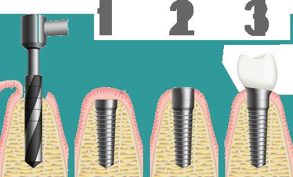 Implantete-2